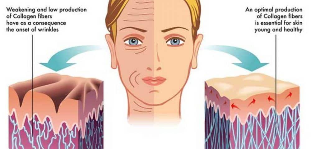 Houston Micro Needling Facials