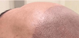 Scalp Micropigmentation houston